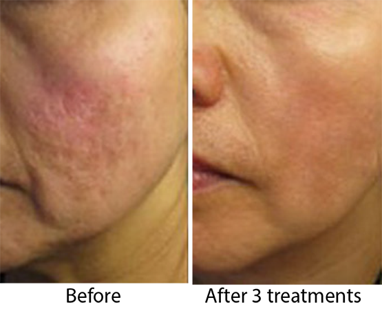 dermapen before and after acne scars